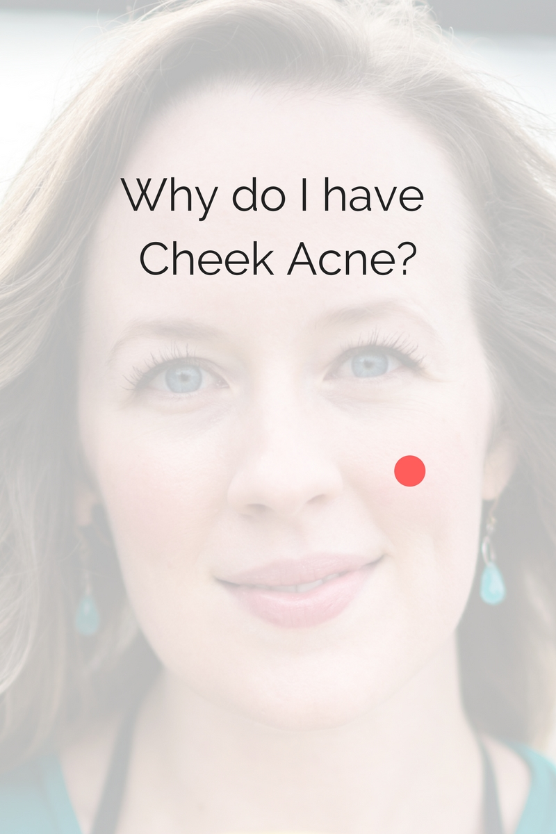 Cheek acne